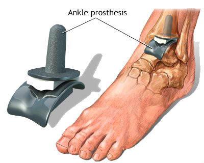 ankle replacepng