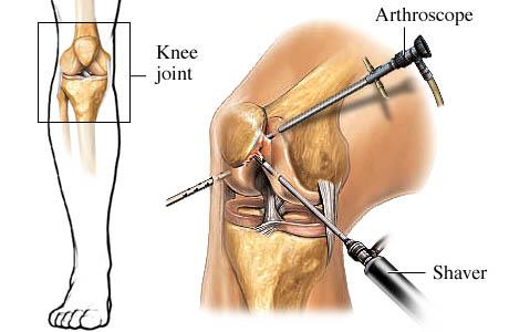 Orthopaedic Surgeon In Nashik
